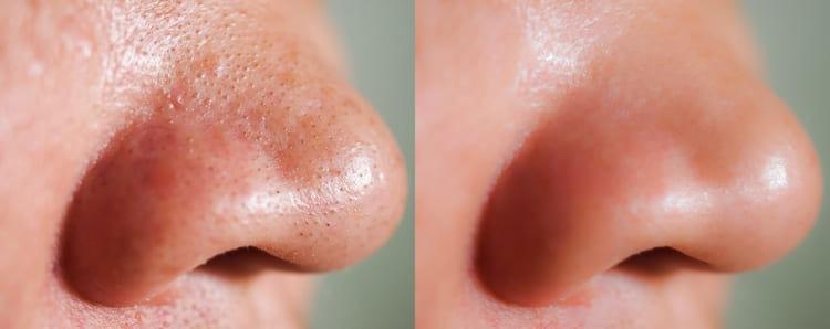 毛穴の黒ずみいちご鼻